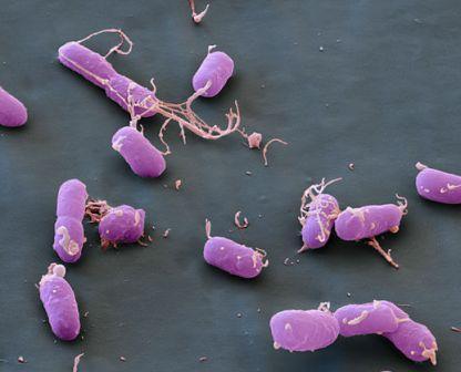 Plague bacteria, Yersinia pestis. Бактерия чумы
