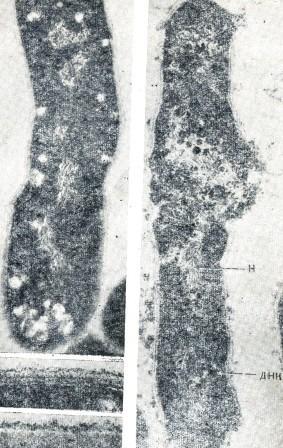 Рис. 1. Электронномикрофото С. diphtheriae (по Barksdale, 1970)